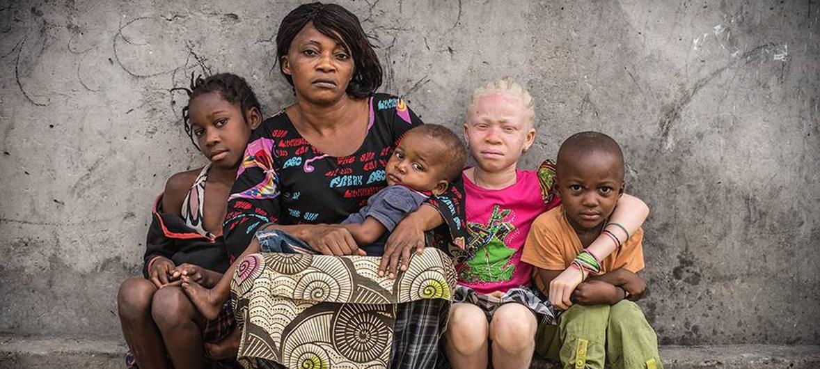 Meios de protecção de pessoas com albinismo em Moçambique